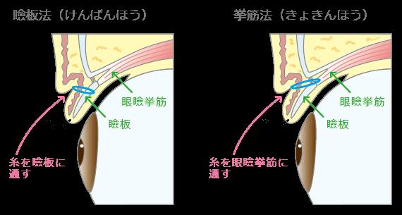 瞼板法と拳筋法
