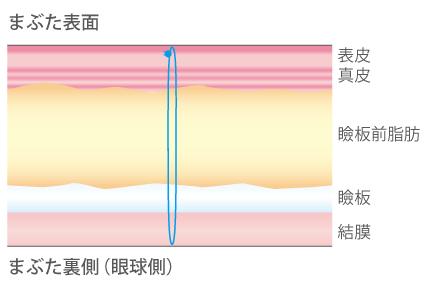 点で固定するやり方イメージ図