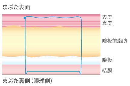 線で固定するイメージ図