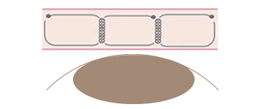 フォーエバー二重術の構造・留め方